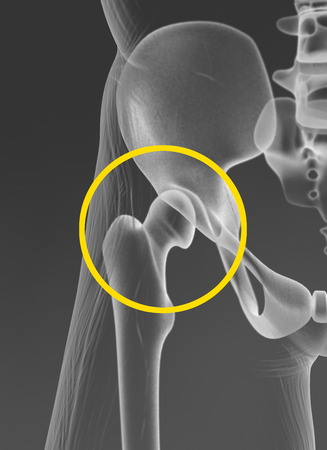 Hip joint, pelvis, medically 3D artwork, x-ray view