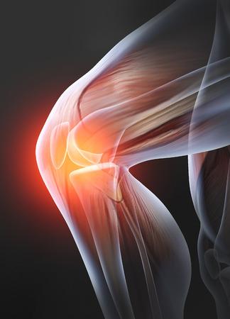 Schmerzhaftes Kniegelenk mit Muskeln, medizinisch 3D-Darstellung