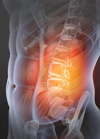 Painful osteoarthritis vertebral joint, medically 3D illustration