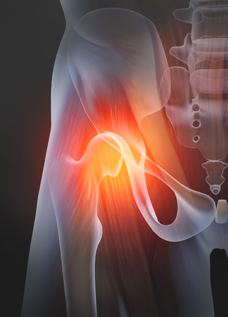 Osteoarthritis, painful hip joint, 3D illustration