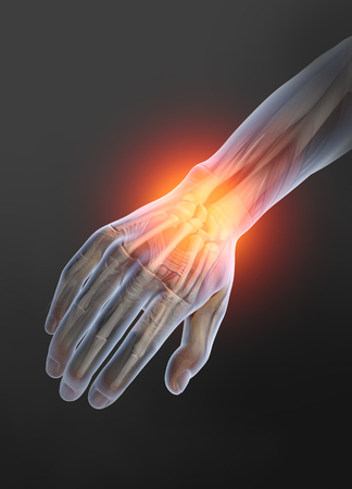 Painful wrist, medically 3D artwork Banque d'images - 117267209
