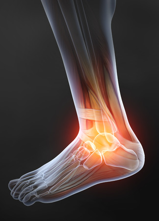 Osteoarthritis, painful ankle joint, 3D illustration