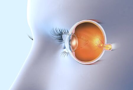 medically 3D illustration showing human eye with artificial lens, pupil, iris, anterior chamber, posterior chamber, ciliary body, eye ball, muscles, macula, vitreous body and optic nerve