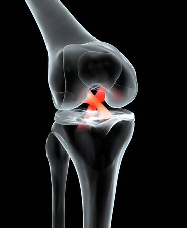 Accurate medically 3D illustration showing painful knee joint with highlighted anterior and posterior cruciate ligament, meniscus, articular cartilage, femur and tibia.
