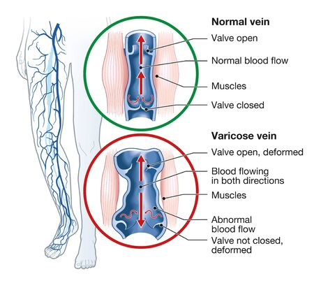 Illustration showing varicose veins and normal veins 版權商用圖片