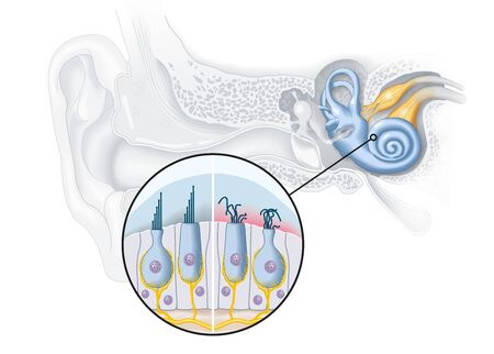 Healthy and damaged hair cells inside cochlea