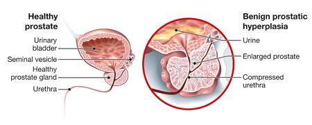 Prostate Hyperplasia csomó)