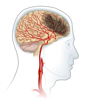 Illustration showing plaque in carotid artery, blood clot breaking off and blocking blood flow