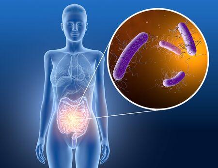3D illustration showing clostridium difficile bacteria in intestine