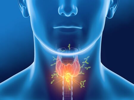 Medically 3D illustration showing antibodies attacking thyroid gland of a man.