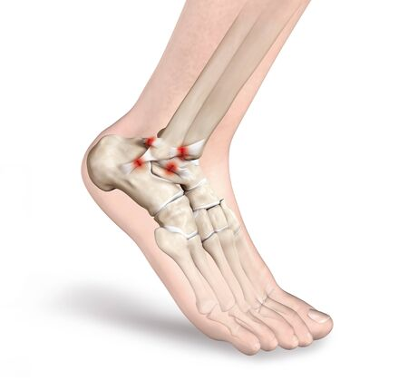 3D illustration showing rupture of a ligament in ankle joint 版權商用圖片
