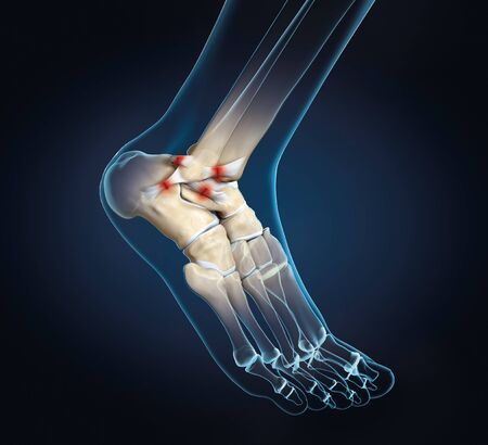 3D illustration showing rupture of a ligament in ankle joint