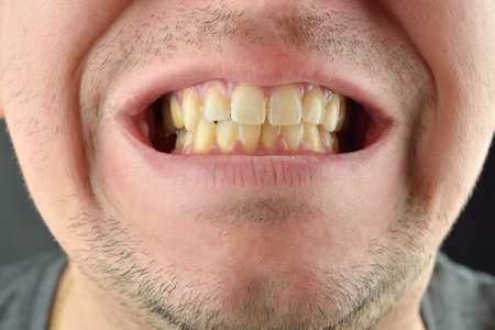 Detailed image of man showing his teeth. Dental health care. Hygiene teeth. Dentistry Stock Photo