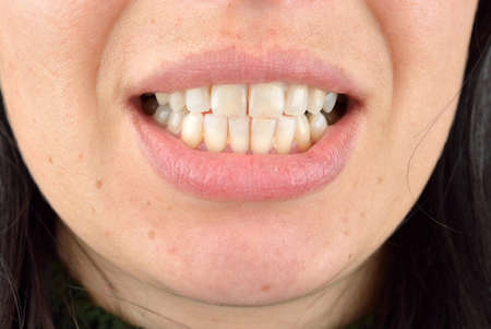 Close up of healthy teeth of young woman. Dental health care. Hygiene teeth. Dentistry Stock Photo