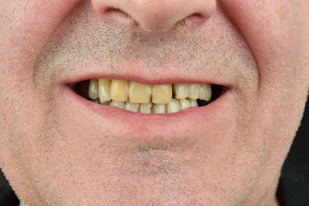 detailed image: Detailed image of man showing his teeth. Dental health care. Hygiene teeth. Dentistry Stock Photo