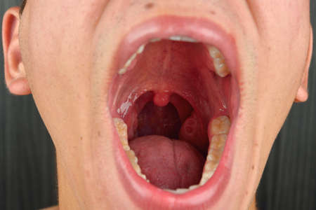 mouth opened: Detailed image of young man with the mouth opened. Details of the inner mouth, masses, teeth, tonsils, uvula