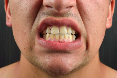 mouth smile: Detailed image of man showing his teeth. Dental health care. Hygiene. Dentistry Stock Photo
