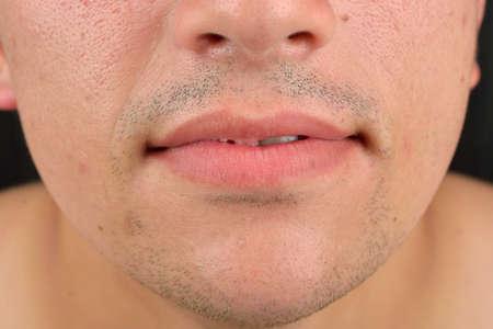 sexualidad: Cierre de tiro de una parte de la cara del hombre, de los labios, la nariz, la barbilla, la piel cuidado médico. Concepto de la sexualidad masculina
