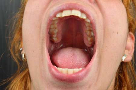 mouth close up: Close up of female patient mouth with decayed and fillings tooth. Dental health care concept. Hygiene teeth. Dentistry Stock Photo
