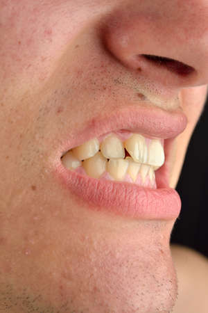 detailed image: Detailed image of man showing his teeth. Dental health care. Hygiene. Dentistry Stock Photo