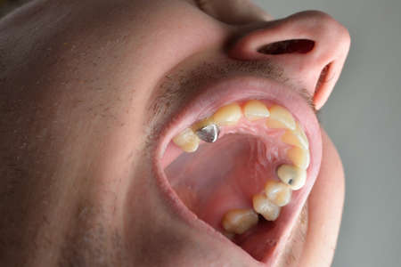 mouth close up: Close up of man patient mouth with decayed tooth. Dental health care concept. Hygiene teeth. Dentistry