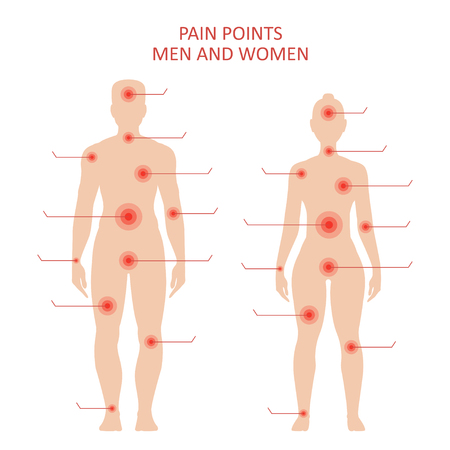 Pain points on male and female body, sensitive spots for medical treatment, educational poster. Vector flat style illustration isolated on white background Stock Illustratie