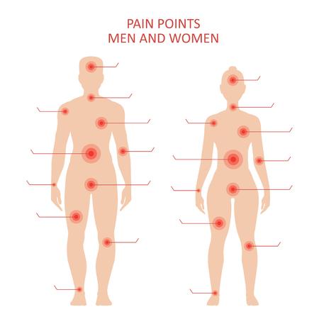 Puntos de dolor en el cuerpo masculino y femenino, puntos sensibles para el tratamiento médico, cartel educativo. Vector ilustración estilo plano aislado sobre fondo blanco