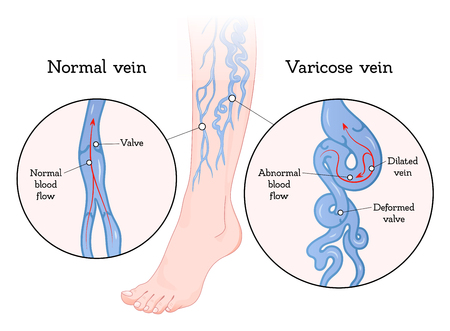 Varicose veins poster