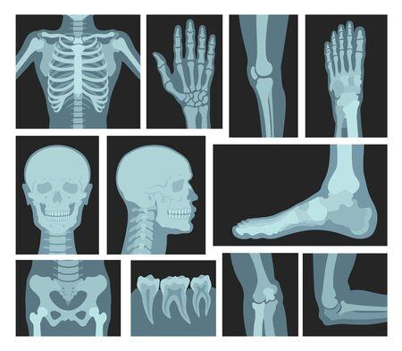 X rays of human body, medical equipment