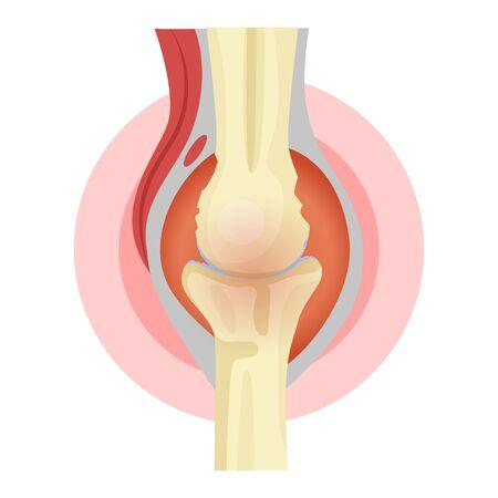 Bone rheumatism, pain and bone injury, healthcare symbol