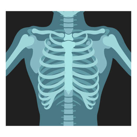 Thorax x-ray. Lungs radiological control. Radiography of chest, ribs., torso. Fluorography. 写真素材 - 150640025