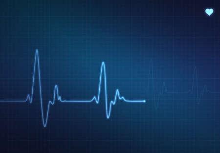 battement du coeur: Heartbeat m�dicaux monitor (�lectrocardiogramme) avec le symbole de fond et le coeur bleu