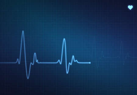 pulse trace: Medical heartbeat monitor (electrocardiogram) with blue background and heart symbol