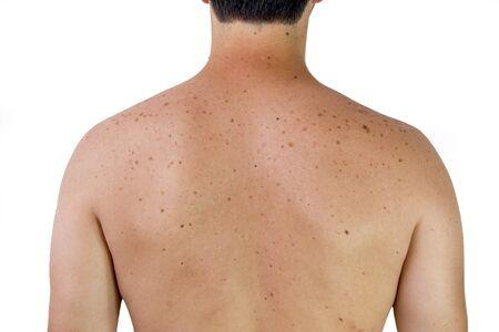A male shoulder with sunspots Stock fotó