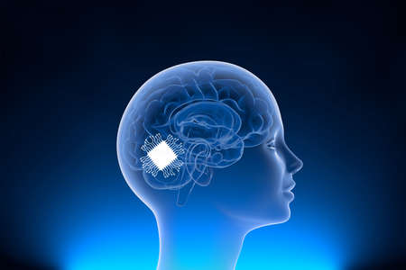Neuralink surgically implant some computer components onto the surface of your brain for neural network connection between software and hardware