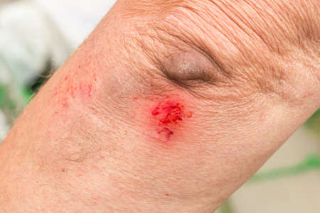 Damaged or torn wound to the elbow with the blood of an elderly person, close-up.