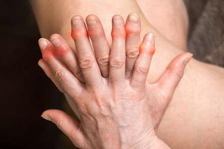 Elderly woman's hands with sore fingers. Finger treatment concept. Reklamní fotografie