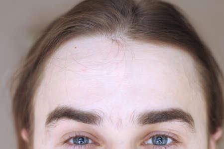 gray eyes: forehead of european man with gray eyes Stock Photo