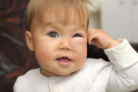 gnat: kid with a swollen eye from an insect bite