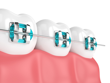 3d render of teeth with braces isolated over white background