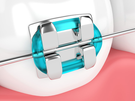 3d render of tooth with brace isolated over white background