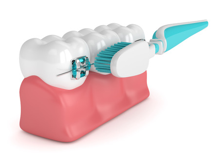 3d render of teeth with braces and toothbrush isolated over white background