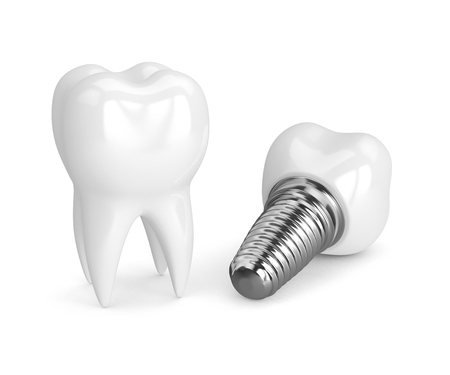 3d render of tooth with dental implant isolated over white background
