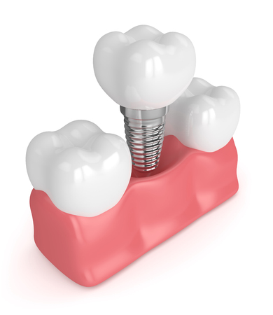 3d render of teeth with dental implant isolated over white background Stock Photo