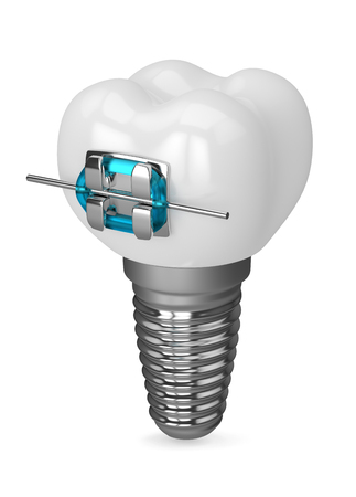 3d render of dental  implant and brace over white