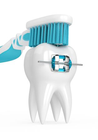 3d render of tooth with brace and toothbrush isolated over white background Stock Photo