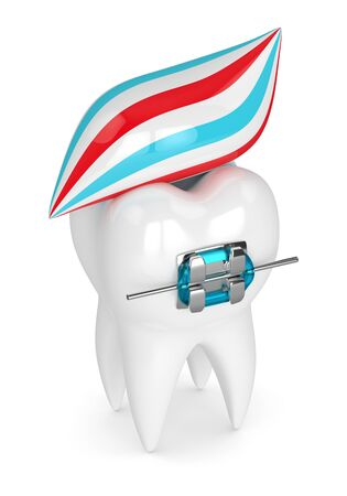 3d render of tooth with brace and toothpaste isolated over white background