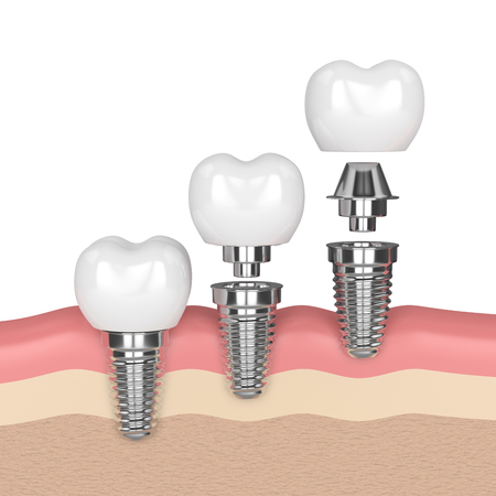3d render of dental implants in gums over white background Фото со стока
