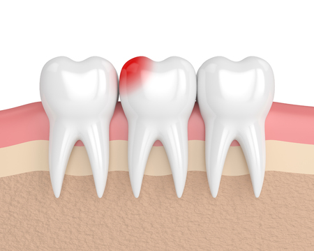 3d render of teeth with toothache in gums isolated over white background