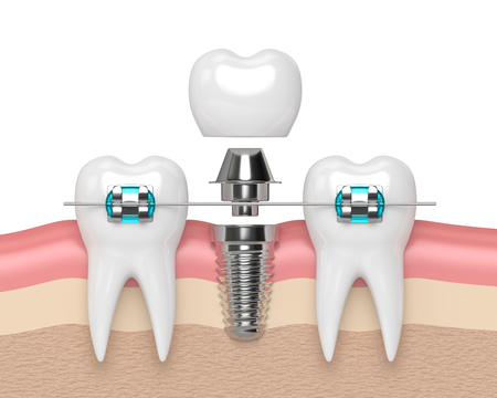3d render of teeth with dental implant and  braces over white